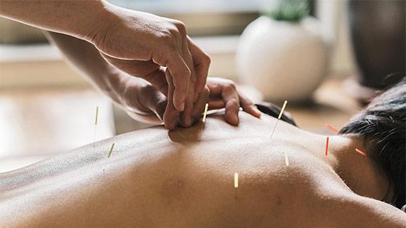 Mobile Acupuncture Treatment Toronto